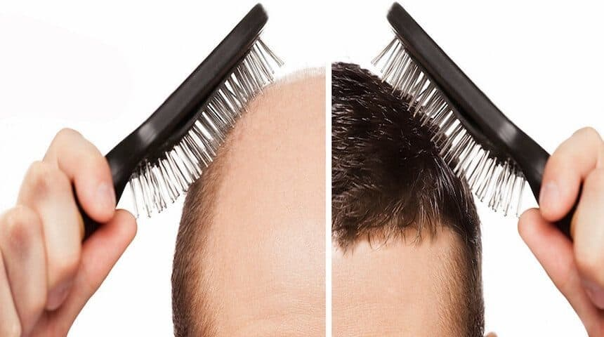 10 things to know about hair transplantation