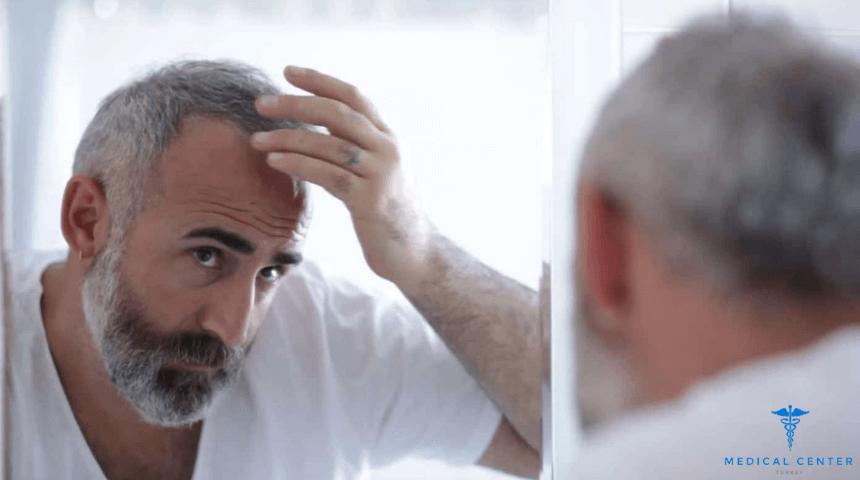 Hair transplanted man