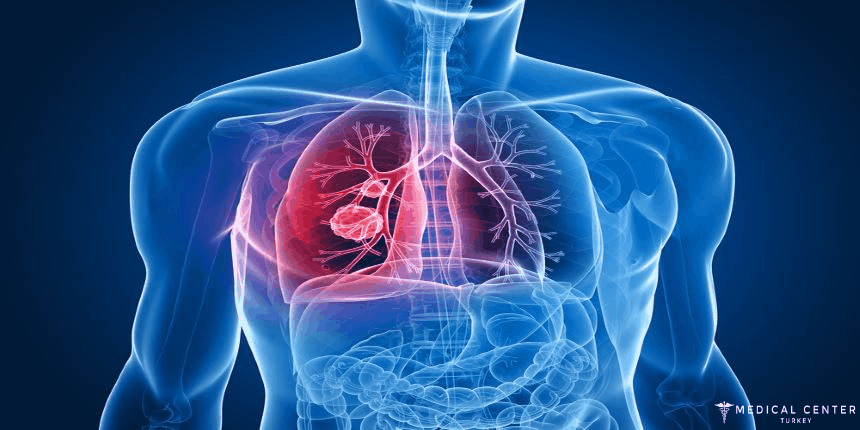 lung cancer treatment in turkey